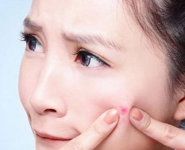 Học cách phòng tránh mụn thịt quanh mắt ngay tại nhà3