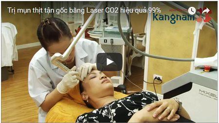 Cận cảnh quá trìn tẩy nốt ruồi thịt bằng Laser CO2