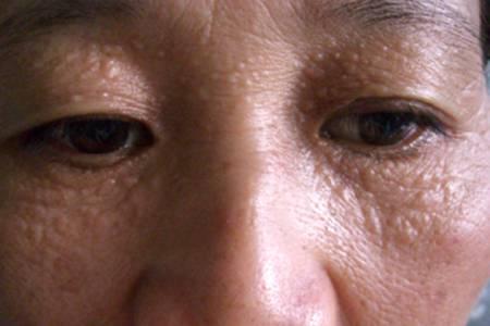 Trị mụn thịt bằng Laser CO2 Fractional an toàn cho da, không xâm lấn