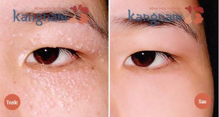 Kết quả khách hàng nặn mụn thịt quanh mắt bằng Laser CO2 Fractional tại Kangnam2