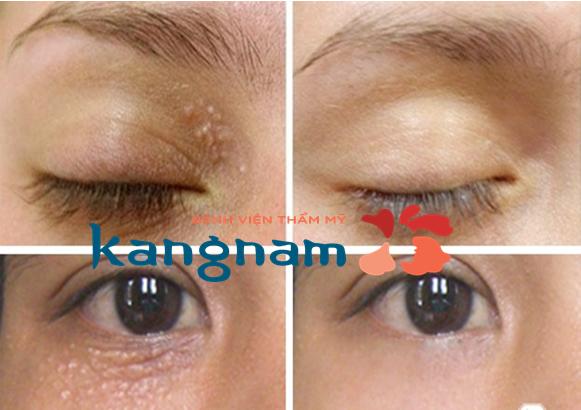 Kết quả khách hàng nặn mụn thịt quanh mắt bằng Laser CO2 Fractional tại Kangnam
