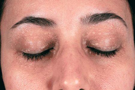 chữa mụn thịt quanh mắt ở đâu tốt nhất tại Hà Nội