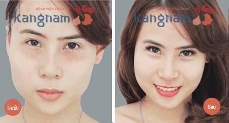 Kết quả chữa mụn thịt quanh mắt tại Kangnam