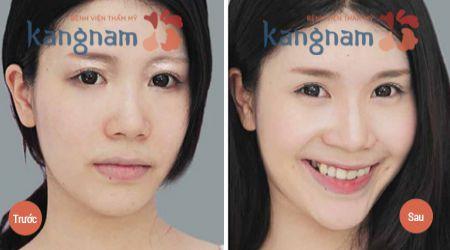 Hết sạch mụn thịt quanh mắt sau khi điều trị tại Kangnam