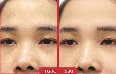 Hình ảnh trước và sau khi trị mụn thịt quanh mắt tại Kangnam