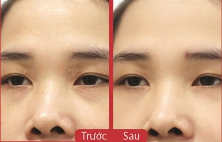 Trị mụn gạo trên mặt bằng Laser CO2 hiệu quả