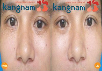 Kết quả khách hàng sau điều trị mụn thịt bằng Laser CO2 Fractional tại Kangnam