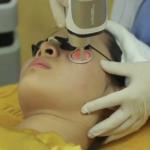 Dùng laser trị mụn thịt quanh mắt có gây ảnh hưởng đến mắt không?