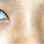 Cách điều trị mụn thịt quanh mắt hiệu quả nhất?