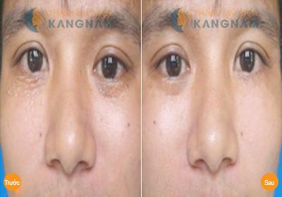 chữa trị mụn thịt quanh mắt