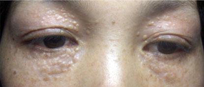 điều trị mụn thịt ở mắt