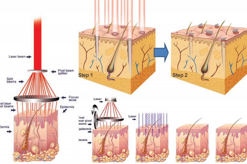 laser-co2-fractional-co-tri-duoc-mun-thit-vinh-vien5