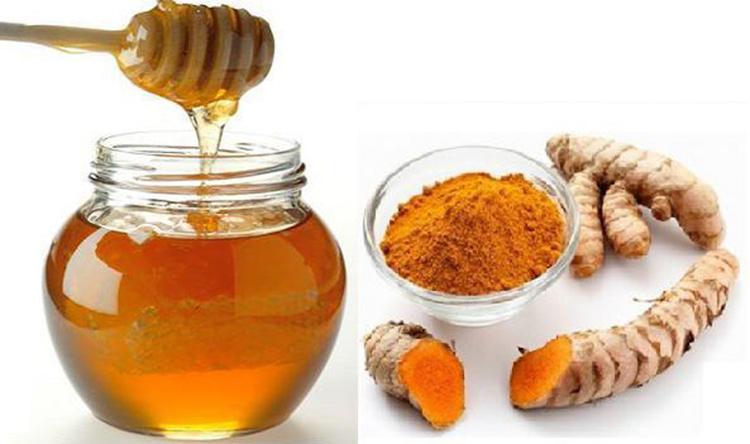 Mặt nạ trị mụn thịt từ nghệ và mật ong