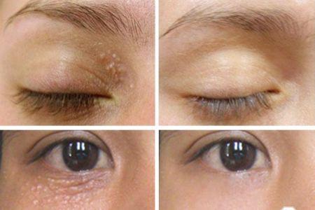 Mẹo chữa mụn thịt quanh mắt nhanh nhất