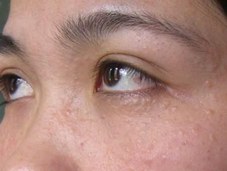 Mụn thịt hay còn gọi là u tuyến mồ hôi quanh mắt