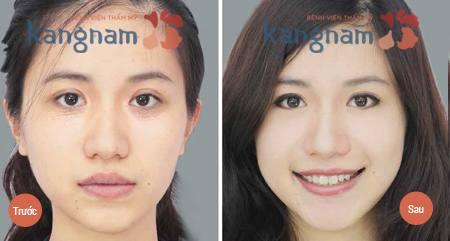 Hình ảnh trước và sau trị mụn thịt
