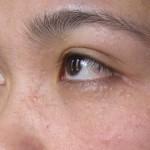 Cách chữa mụn thịt ở mắt Triệt Để hiệu quả nhất 2016