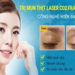 Cách chữa trị mụn thịt quanh mắt hiệu quả nhanh chóng nhất