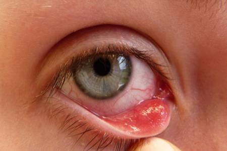 Mụn trắng trong mắt 1