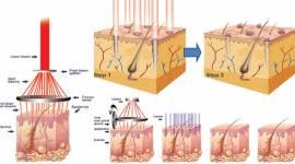 Mụn thịt là gì? Tìm hiểu nguyên nhân và cách điều trị triệt để nhất