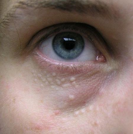 Mụn thịt quanh mắt không nguy hiểm nhưng gây mất thẩm mỹ