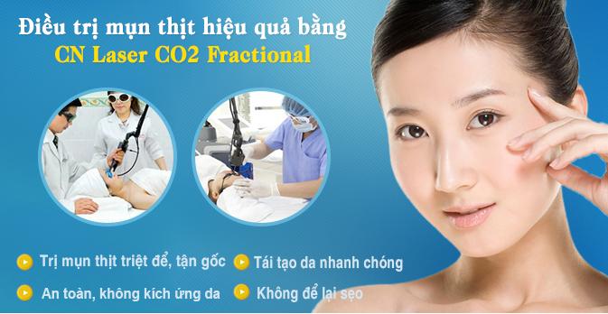tri-mun-thit-bang-Laser-CO2-Fractional-co-dau-khong