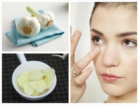 Chi tiết cách trị mụn thịt quanh mắt bằng tỏi đơn giản và hiệu quả nhất