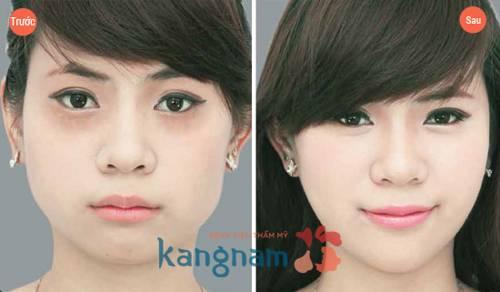 Kết quả sau khi điều trị mụn thịt bằng Laser Co2 Fractional tại Kangnam