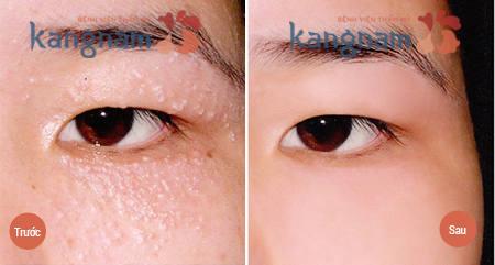 Trị mụn thịt quanh mắt hiệu quả bằng Laser CO2 Fraction